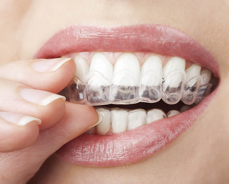 woman enjoying her new straight smile with clear aligners from invisalign