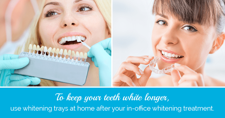 Teeth whitening comparisons and trays