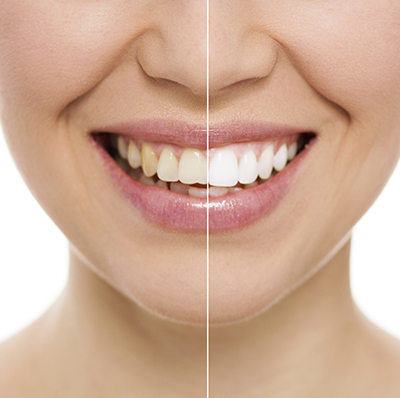 woman smiling with before and after teeth whitening