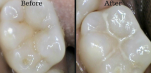 protect the chewing surface of your tooth from cavity