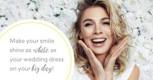 wedding planning teeth whitening