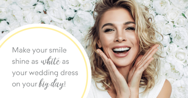 wedding planning teeth whitening