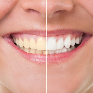 Close-up of teeth before and after Zoom! whitening.