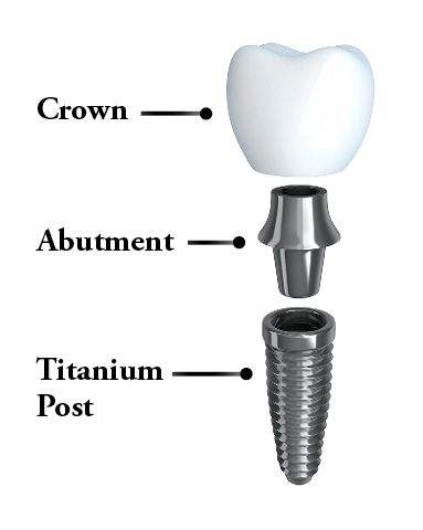 Anatomy of a dental implant; post, abutment, and crown.
