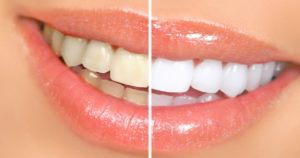 Woman smiling showing before and after of Zoom teeth whitening