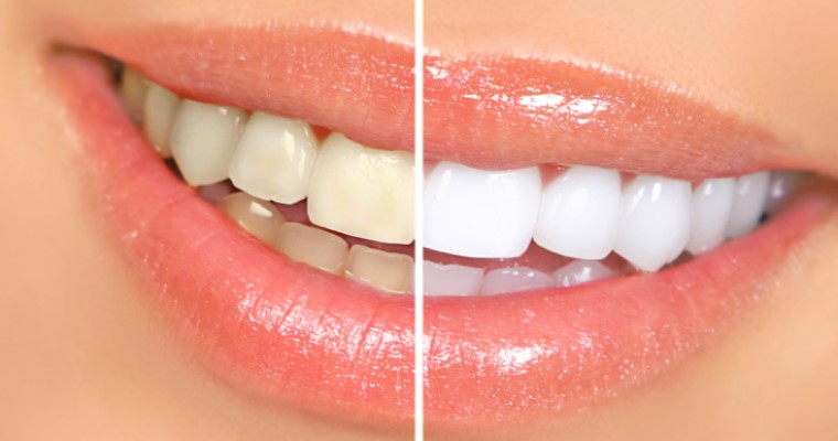 Everything You Need to Know About Zoom! Teeth Whitening
